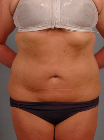 25-34 year old woman treated with Smart Lipo after 1597702