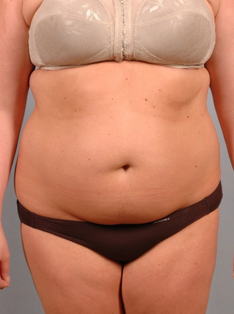 25-34 year old woman treated with Smart Lipo before 1597702