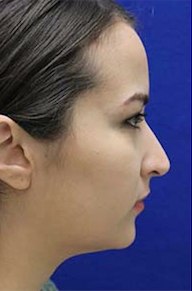 Rhinoplasty before 3202632