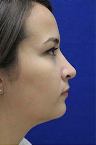 Rhinoplasty after 3202632