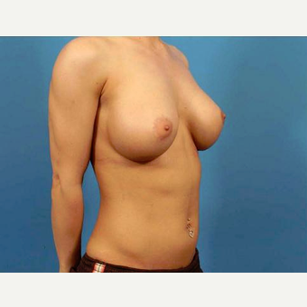 25-34 year old woman treated with Breast Implants after 3787024