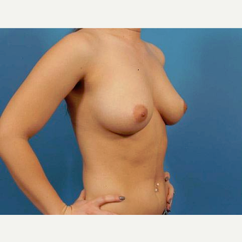25-34 year old woman treated with Breast Implants before 3787024