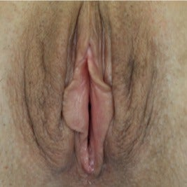 Vaginal Rejuvenation before 1895089