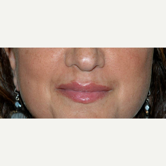 Lip Lift after 3710939