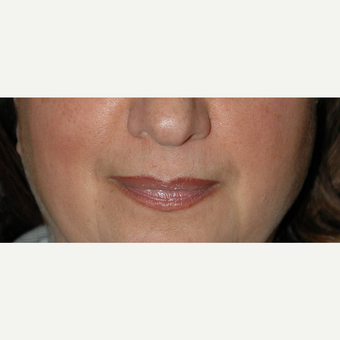 Lip Lift before 3710939