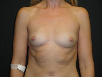 Breast reconstruction - Implants before 919142