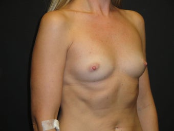 Breast reconstruction - Implants 919142