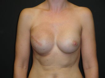 Breast reconstruction - Implants after 919142