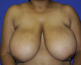 35-44 year old woman treated with Breast Reduction before 1699407