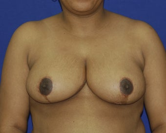 35-44 year old woman treated with Breast Reduction after 1699407