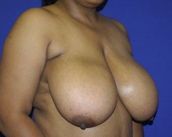 35-44 year old woman treated with Breast Reduction 1699407