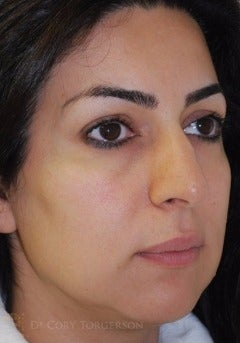 25-34 year old woman treated with Rhinoplasty before 3258786