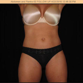 35-44 year old woman treated with SculpSure after 2895300
