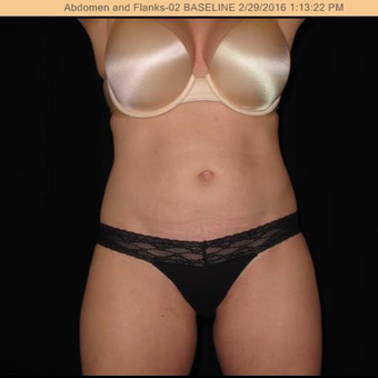 35-44 year old woman treated with SculpSure before 2895300