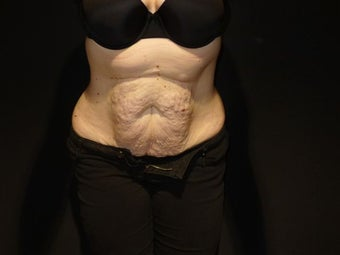 Tummy Tuck before 1486551