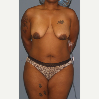 25-34 year old woman treated with Breast Lift before 3453353