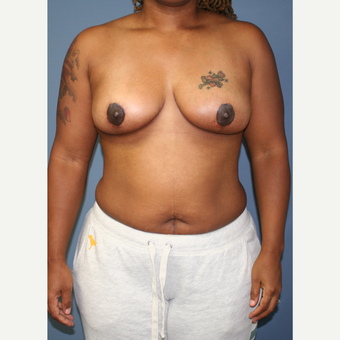 25-34 year old woman treated with Breast Lift after 3453353
