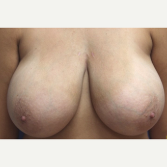 21 year old woman with a Breast Reduction before 3181427