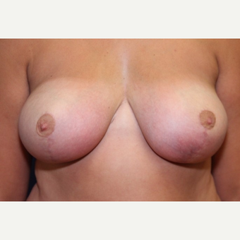 21 year old woman with a Breast Reduction after 3181427