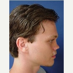 18-24 year old man treated with Revision Rhinoplasty before 2110075