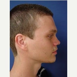 18-24 year old man treated with Revision Rhinoplasty after 2110075