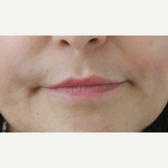 55-64 year old woman treated with Lip Augmentation before 3300541