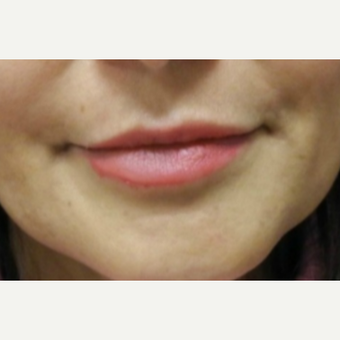 55-64 year old woman treated with Lip Augmentation after 3300541