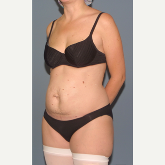 35-44 year old woman treated with Tummy Tuck before 3558350