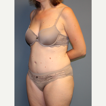35-44 year old woman treated with Tummy Tuck after 3558350