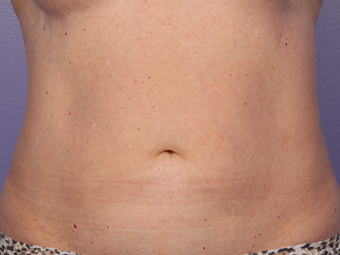 CoolSculpting by Zeltiq to Abdomen after 375517