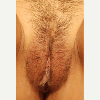 18-24 year old woman treated with Labiaplasty before 3656795
