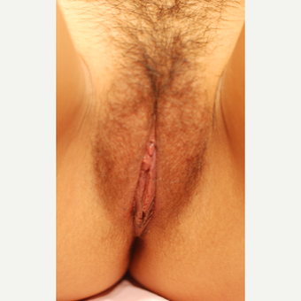 18-24 year old woman treated with Labiaplasty after 3656795