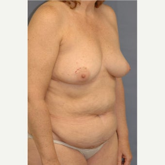 45-54 year old woman treated with Breast Reconstruction 1835969