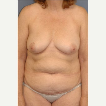 45-54 year old woman treated with Breast Reconstruction before 1835969
