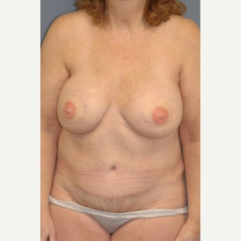 45-54 year old woman treated with Breast Reconstruction after 1835969