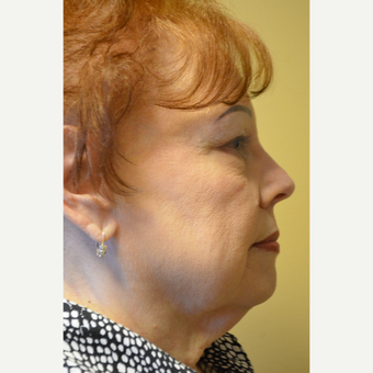 65-74 year old woman treated with Facelift, Neck Liposuction, and Perioral Dermabrasion before 3371402