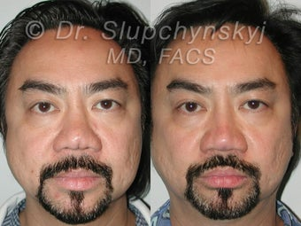 50 Year Old Asian Male - Revision Rhinoplasty