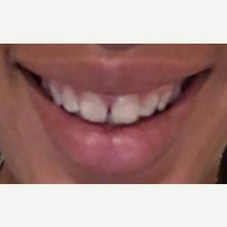 25-34 year old woman treated with Botox for Gummy Smile after 3092362