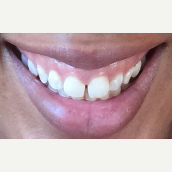 25-34 year old woman treated with Botox for Gummy Smile before 3092362