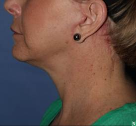 face and neck lift 56 year old after 1336029