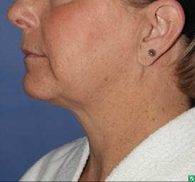 face and neck lift 56 year old before 1336029