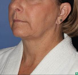 face and neck lift 56 year old 1336029