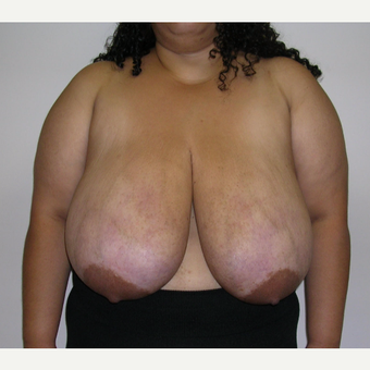25-34 year old woman treated with Breast Reduction before 3683573