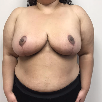 25-34 year old woman treated with Breast Reduction after 3683573