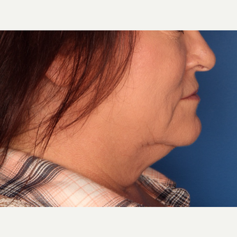 52 year old woman treated with Kybella before 3709965
