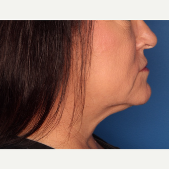 52 year old woman treated with Kybella after 3709965