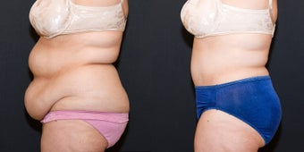 Tummy Tuck after 1498821