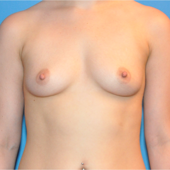 Breast Augmentation before 3377391
