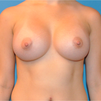 Breast Augmentation after 3377391
