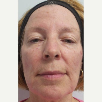 55-64 year old woman treated with Restylane Lyft to cheeks and marionettes after 2363720